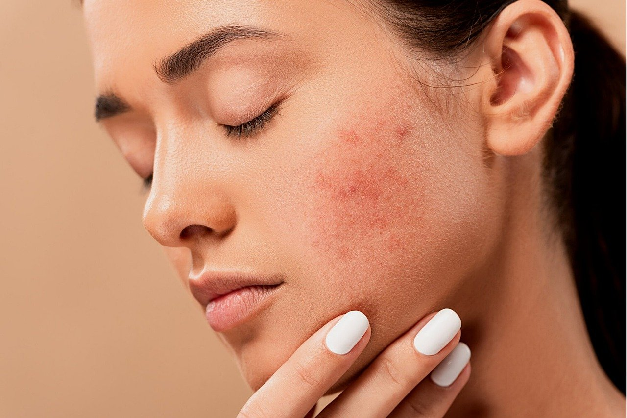 How to choose the right type of acne treatment