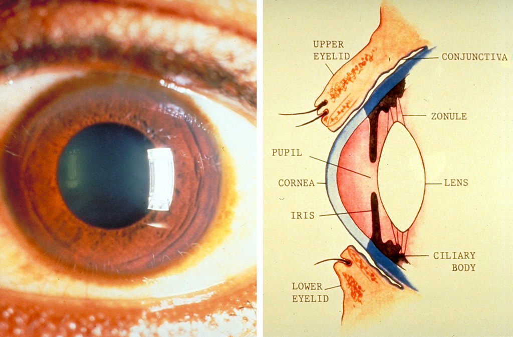 Eye Health Produces Kefir Benefits for Maximum Health